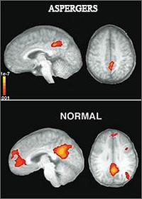 Aspergers-brain-goog